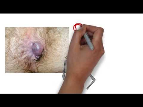 How To Get Rid Of Hemorrhoids Fast - This One WORKS! - YouTube
