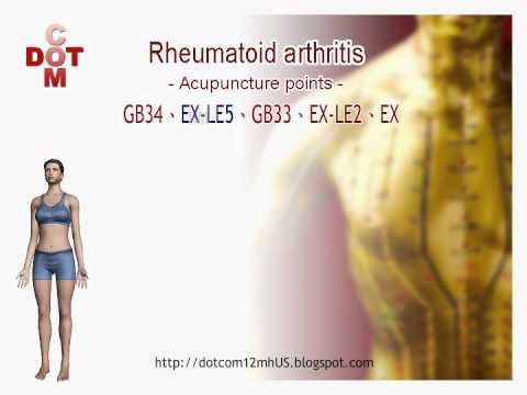 Rheumatoid arthritis DIY acupuncture points【12MH】 - YouTube