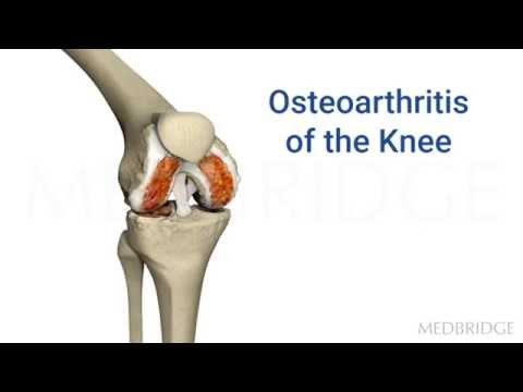 Current Concepts in Joint Replacement Video : John OHalloran | MedBridge