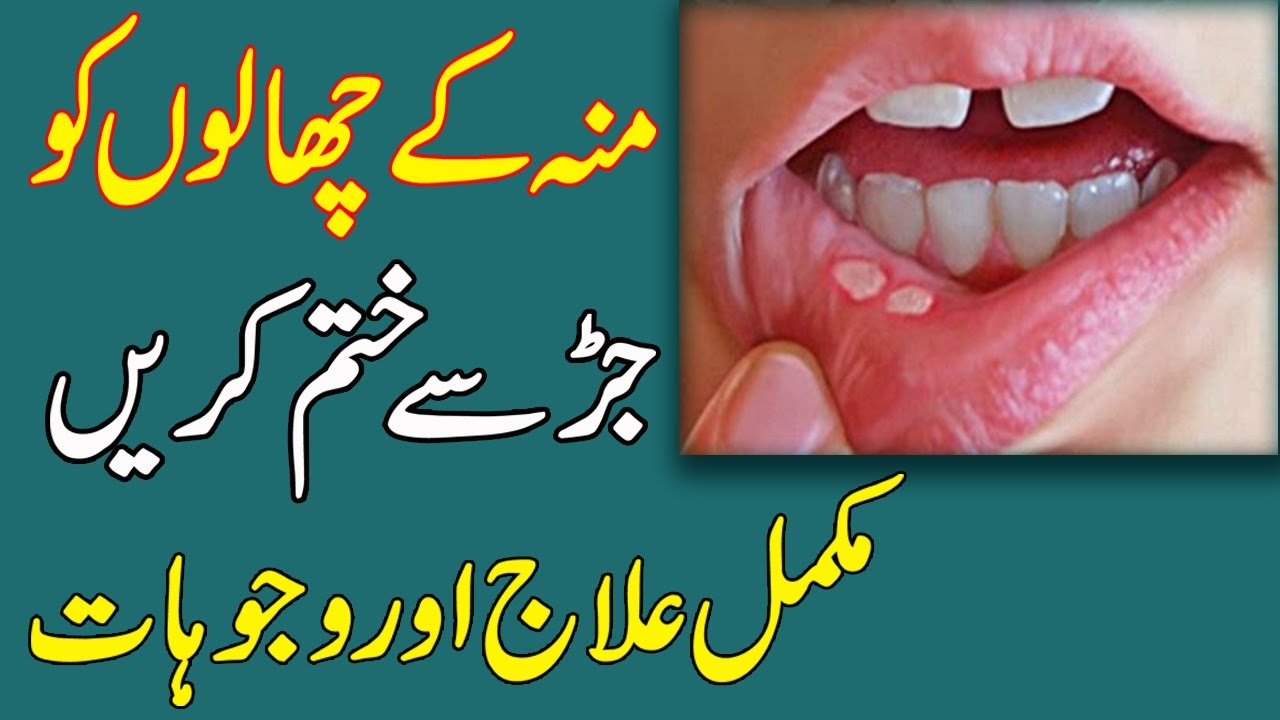 what vitamin is good for mouth ulcers