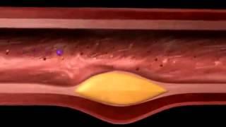 Bagaimana pembuluh darah bisa tersumbat