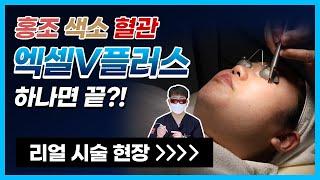 피부과레이저시술 홍조/색소/혈관 한 방에 없애는 방법?…