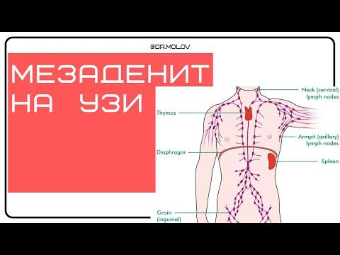 Мезаденит на УЗИ брюшной полости (увеличение лимфоузлов)