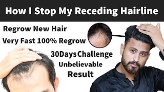 How I Stop Receding Hairline & Regrow New Hair Very Fast Naturally   Receding Hairline Regrowth Fast