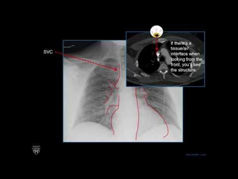 Plain Film Cardiac and Vascular Anatomy - Frontal Radiograph - Philip Araoz, M.D. - Part 1 of 10