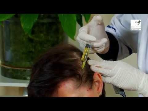Мезотерапия для волос - процесс и результат
