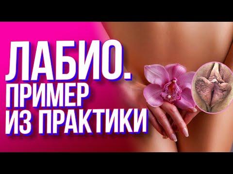 Лабиопластика. Хирург - Ваганова Н.А.