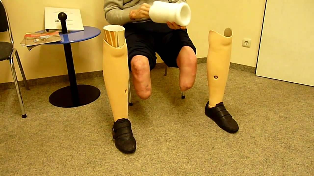 Beide Beine amputiert gehen mit Prothesen  YouTube