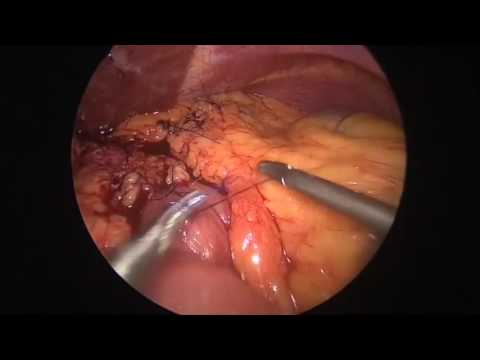 Surgical Treatment Of Bleeding Marginal Ulcer After Roux En Y