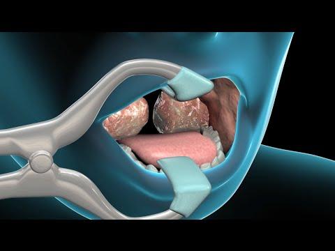 Amigdalectomía y adenoidectomía - YouTube