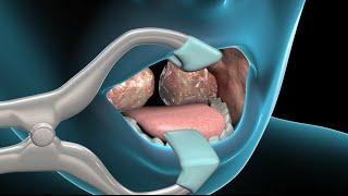 Arterial la daño amigdalectomía en