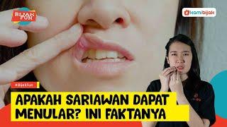 Oral Thrush, Infeksi Jamur pada Mulut yang Disebabkan oleh Jamur Candida Albicans.