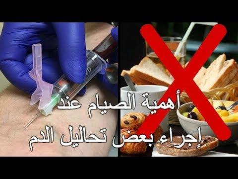 الصيام عند إجراء بعض تحاليل الدم،شرب الماء فقط،التحاليل الصباحية!!Analyses à jeun