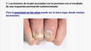 Tratamientos para Psoriasis Ungueal - Como realizar un tratamiento para la psoriasis en las uñas
