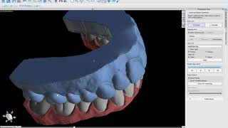 Ordering Digital Dental Lab Work Directly From Within BlueSkyPlan