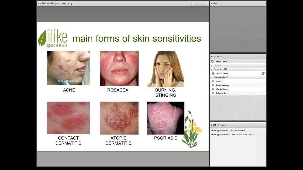 Sensitive Skin  Symptoms  Causes And Treatments