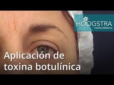 Aplicación de toxina botulínica (17070)