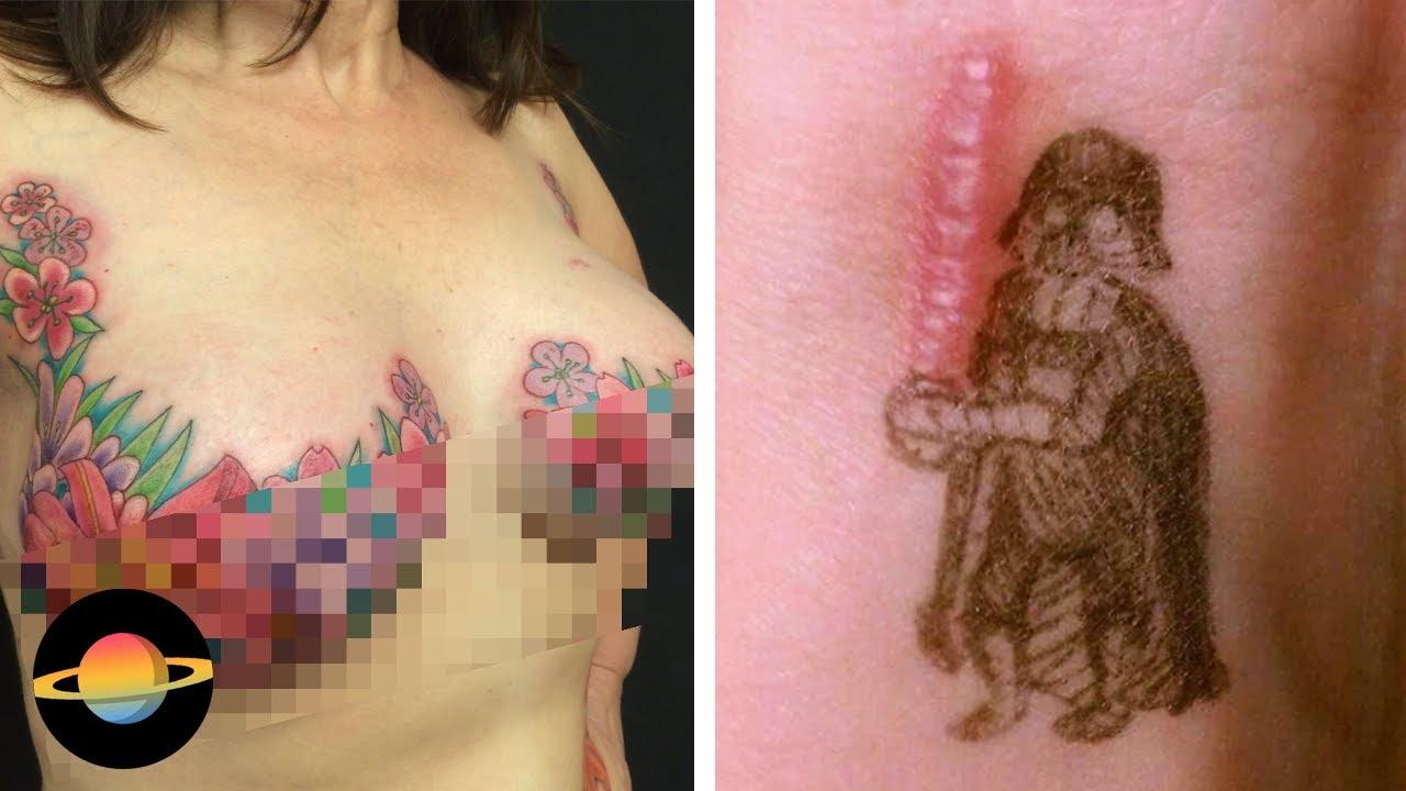 10 niezwykłych tatuaży, które zmieniły blizny w dzieła sztuki, cz. 1
