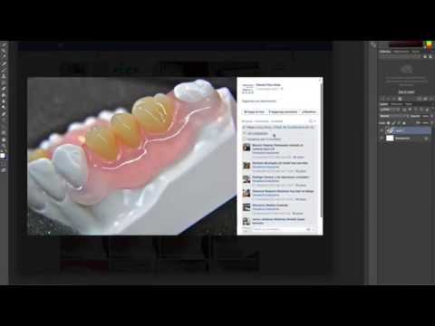 Vertex PT using Dental Flex Italia images