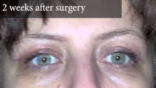 Upper Eyelid Surgery Photos of a Real Patient and Video Account of Two Weeks After Surgery Thumbnail