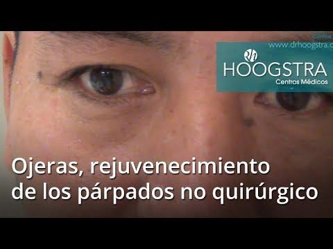 Ojeras, rejuvenecimiento de los párpados no quirúrgico (18040)