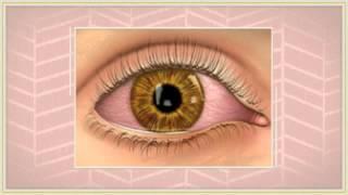 Symptoms of pink eye