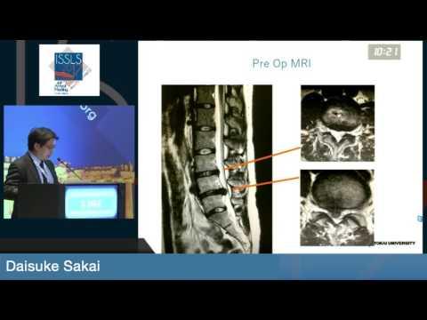 "Dr. Daisuke Sakai -""Regenerative Medicinal Products for Low Back Pain: Global Regulatory Affairs..."""