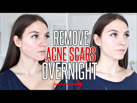 How To Get Rid Of ACNE SCARS OVERNIGHT !!