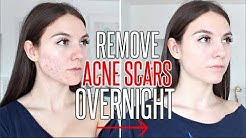 hqdefault - Fastest Ways To Get Rid Of Acne Marks