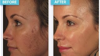 SkinMedica Lytera 2.0 Pigment Correcting Serum @ Suddenly Slimmer Med Spa - Phoenix | Arizona