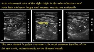 Video Ultrasound guided adductor canal  block download MP3, 3GP, MP4, WEBM, AVI, FLV Juli 2018