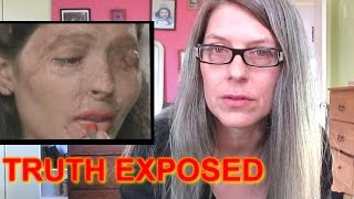 1500 ACID ATTACKS IN UK (And what the media refuses to tell you)