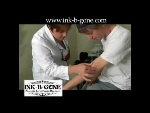Ink-b-Gone - Tattoo Removal in Denver