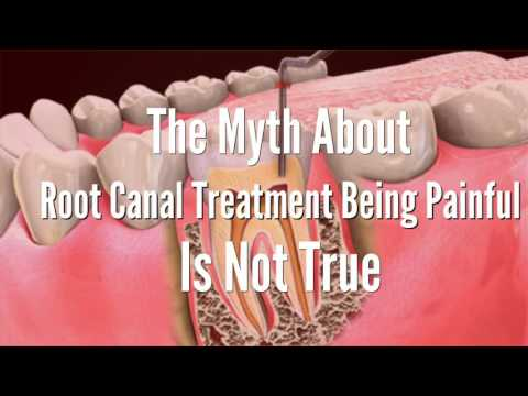 Root Canal Treatment For Infected Tooth