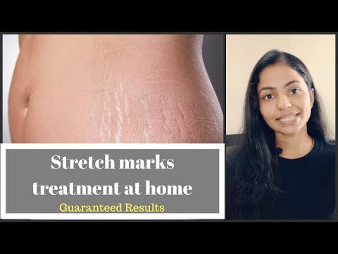 Stretch marks treatment (IN HINDI)| Causes, Prevention, Dermaroller, Home remedies|Guaranteed Result
