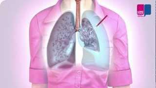 Klaplong - wat gebeurt er in je longen?