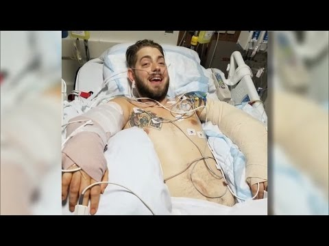 Marine Who Lost Limbs in Middle East Explosion Gets Double Arm Transplant