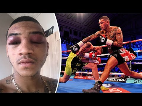 See Boxers NASTY Post-Fight Face!  Ouch!