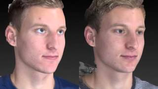 Rhinoplasty 3D Before and After-17