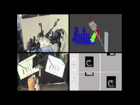 Advanced concepts in Robotic Surgery: Virtual Fixtures and In-Body Navigation