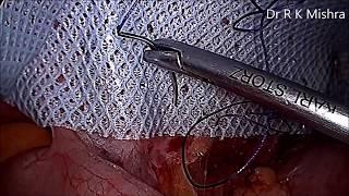 Laparoscopic inguinal hernia repair