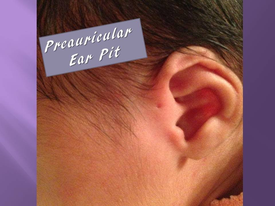 Preauricular Ear Pit - YouTube