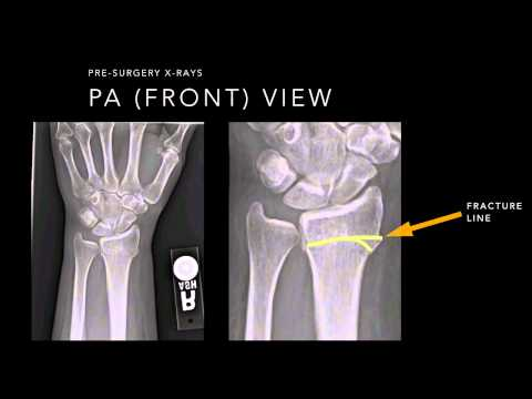 Wrist Fracture X-rays