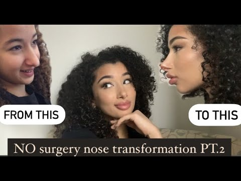 How I Transformed My Nose With NO Surgery Pt.2