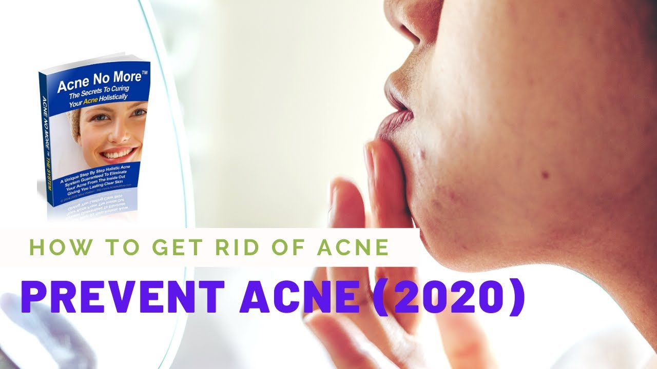 How To Get Rid of Acne | Prevent Acne 2020 - YouTube