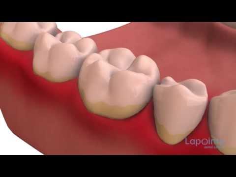 Dental plaque - Lapointe dental centres