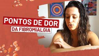 Da fibromialgia estágios