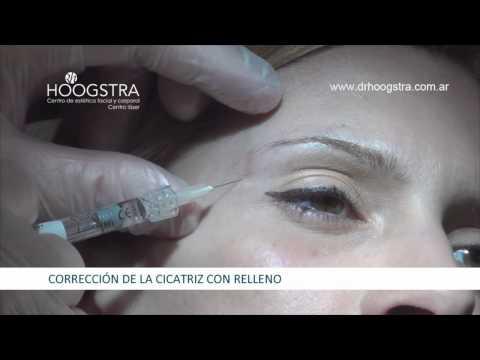 Corrección de cicatriz por piercing (14089)