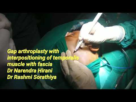 T M Joint ankylosis, Gaparthroplasty & interpositioning of temporalis muscle &fascia