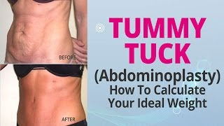 How To Calculate Your Ideal Weight For A Tummy Tuck (Abdominoplasty) Thumbnail